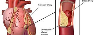Blocked Coronary Arteries